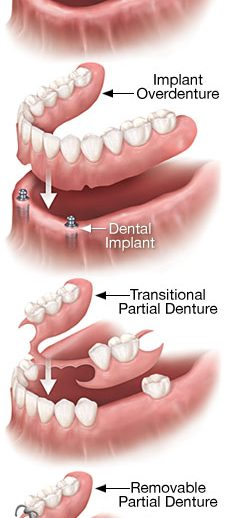 removable-denture-types