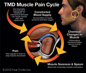 tmd-pain-cycle-thumb